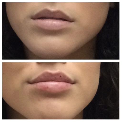 Lip Filler Before/After