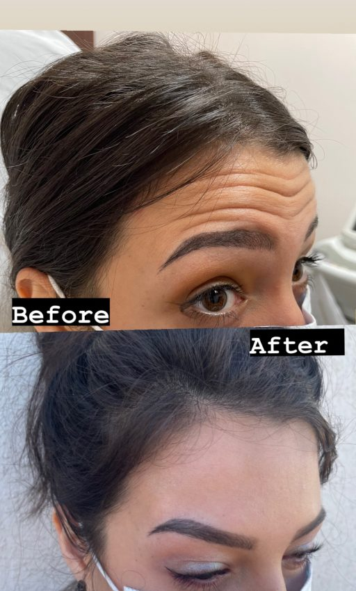 Botox® Before/After